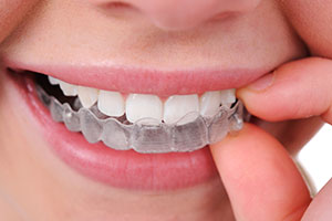Close photo of a young teen wearing Invisalign Braces